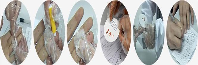 亲子鉴定血痕样本采集步骤